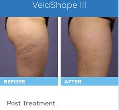 With VelaShape III®, Elk Grove Medical Spa is now able to provide non-surgical body shaping, and you'll see results quickly and without the downtime associated with invasive surgery! Lose Weight At Home, Want To Lose Weight, Diet Patch, Best Weight Loss Program, Medical Spa, Weight Loss Shakes, Lose Body Fat, Body Contouring, Best Diets