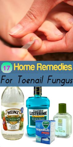 17 Home #Remedies for #Toenail #Fungus #HomeRemedies for toenail Fungus #HealthRemedies #Health and #Wellness