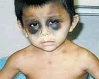 Google Image Result for http://i185.photobucket.com/albums/x134/ralphjonesmusic/child-abuse-12.gif