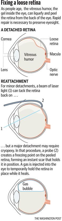 "Article: ""Baby boomer sees the light, and that's bad."" Detached retina can occur spontaneously and requires quick action to preserve vision Eyes Problems, Health Problems, Vitreous Humour, Eye Facts, The Retina, Routine, Healthy Eyes, Baby Boomer, Eye Doctor"
