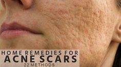 Home Remedies for Acne Scars on Face (22 Methods)