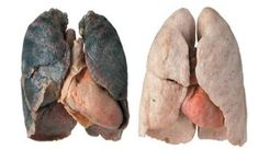 smoker-and-healthy-lungs1-copy