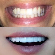 FANTASTIC SMILE MAKEOVER with only 6 Upper Porcelain Veneers + Whitening on the…