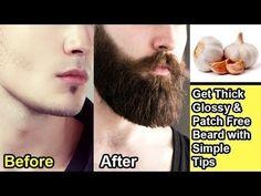 Natural Beard Growth, Beard Growth Kit, Facial Hair Growth, Hair Growth For Men, Beard Growing Tips, Growing A Full Beard, Growing Facial Hair, How To Grow Mustache, How To Get Beard