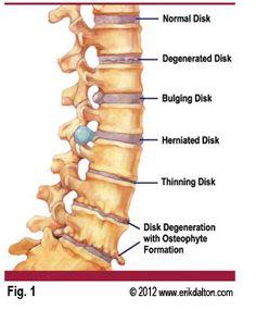 Erik Dalton Immobilization arthritis neck pain techniques