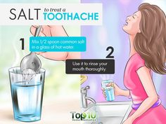Some of the best home remedies that offer immediate relief from the severe pain caused by toothache. These cures work instantly to treat your tooth pain. Teeth Whitening Remedies, Teeth Whitening System, Best Teeth Whitening, Home Remedies Tooth Ache, Top 10 Home Remedies, Natural Remedies, Severe Tooth Pain, Tooth Pain Relief, Tooth Nerve