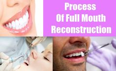 Tips On Having Full Mouth Restoration Procedures Performed