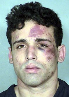 Some more harsh bruising patterns on a man's face.