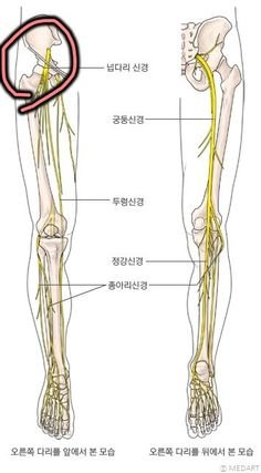 nguinal ligament(샅인대)와 넓적다리신경이 크로스 되는 지점의 염좌 등으로 다리 아래 발까지 통증 발생nguinal ligament(샅인대)