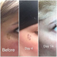Before And After One Week Of Our Photofacials Incredible