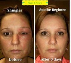 This is Teesha Thompson, and it's the first time she's ever had shingles She was scared to death the shingles would leave scarring on her face! After 5 days of our SOOTHE regimen her redness and swelling is gone!! Just another great reason to love the SOOTHE regimen! Let me order you some today!! Message me!