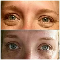 Remember when I was telling you about my amazing before and after using Lip and Eye  cream? Well, here's the deal...It's crazy around here because my team is insane and totally in the business of changing lives...Sleep  gets cut short sometimes, late nights usually aren't a problem because we are an ALARM  FREE household. But this morning we had an early morning meeting, my eyes were showing the fatigue. So Lip and Eye to the Rescue!   The first picture was taken this morning (in my…