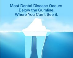 Most Dental Disease occurs below the gum line where you can't see it