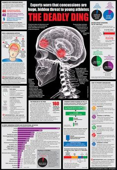 Concussion infographic by InfographicWorld, via Flickr