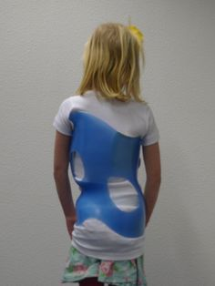 Vandaag hebben wij onze eerste RSC Scoliose Brace  voor scoliose geleverd in samenwerking met Ortholutions. Meer weten over deze kwalitatieve hoogstaande brace. Neem vrijblijvend contact met ons op www.scoliosiscareclinic.com