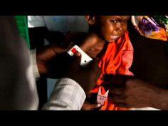 """Dal 12 al 27 gennaio 2014 invia un SMS al 45501 e dona 2€ a Fondazione #Coopi. Il progetto """"Salviamo i bambini nigerini dalla malnutrizione severa"""" tramite interventi sanitari e stimolazione psicosociale, interviene a favore dei bambini, delle ragazze e dei ragazzi che soffrono di malnutrizione elevata severa, in 40 villaggi nella regione di Tillabéri, #Niger."""