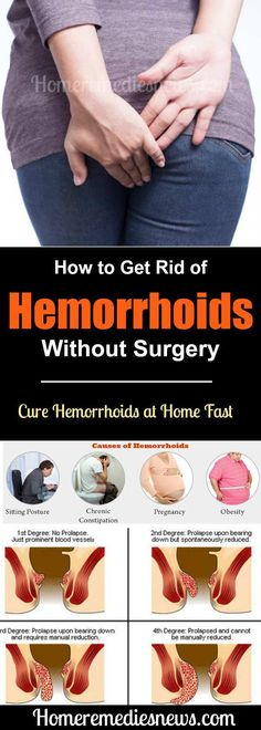 How to Get Rid of Hemorrhoids Without Surgery