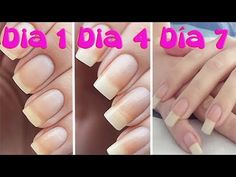Acrylic Nails Beauty Nails Hair Beauty How To Grow Nails Bella Beauty Nail Problems Beauty And The Best Nail Treatment Nail Tips Coffin Nails, Acrylic Nails, Gel Nails, Nail Polish, How To Grow Nails, How To Make, Grow Long Nails, Nagel Hacks, Beauty And The Best