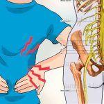 El nervio ciático es aquel que se extiende desde la espalda baja o columna lumbar hasta los pies. Cuando sufre contusiones, puede causarnos dolores tan intensos que nos dejen inmóviles. Por eso es importante que sepamos cuidarlo y como aliviarlo de manera efectiva.De ahí que en este artículo hayamos escogido ...