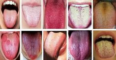 Chinese medicine has been studying the health of the tongue for thousands of years. In fact, knowledge of the tongue comes from Chinese medicine. They describe the health of the tongue through three key factors: color, shape and texture. Healthy Tongue, Tongue Health, Healthy Tips, How To Stay Healthy, Home Remedies, Natural Remedies, Chinese Medicine, Japanese Medicine, Health And Beauty