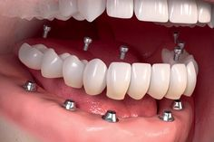 Cosmodent India recommends the treatment of dental implants for utmost protection and life-long benefits. Our trusted cosmetic dentists will provide absolute dental comfort and regain your cute smile for several upcoming years. Creme Anti Rides, Oreo Pudding, Oreo Brownies, Oreo Fudge, Easy Watercolor, Watercolor Paintings, Beginner Painting, Dental Implants, Teeth Implants