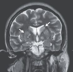 Case 40-2020: A 24-Year-Old Man with Headache and Covid-19 | NEJM 24 Years Old, Year Old, Lumbar Puncture, Intracranial Pressure, Pseudotumor Cerebri, Cerebrospinal Fluid, Emergency Department, Crowns, Age