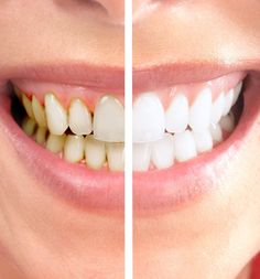 13 Best Zoom Teeth Whitening Images Zoom Teeth Whitening