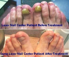 Laser Foot Fungus Treatment Check more at http://www.healthyandsmooth.com/nail-fungus/laser-foot-fungus-treatment/