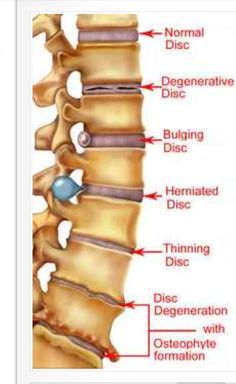 Remedies To Relief Pain herniated disk supplements to help speed recovery and repair-glucosamine with chondroiton, flax seed oil, calcium and phosphorus with vit. D, bee pollen Human Body Anatomy, Human Anatomy And Physiology, Muscle Anatomy, Fitness Workouts, Spine Health, Medical Anatomy, Medical Information, Massage Therapy, Back Pain