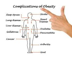 Obesity Liver Disease, Gout, Sleep Apnea, Arthritis, Diabetes, Cancer, Wisdom, Words, Wellness