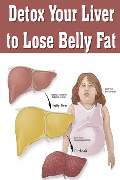 Detox Your Liver to Lose Belly Fat - Joy Remedies Natural Liver Cleanse, Detox Your Liver, Fast Weight Loss Diet, Weight Loss Drinks, Diet Pills That Work, Weight Loss Tablets, Salud Natural, Reduce Body Fat, Good Health Tips