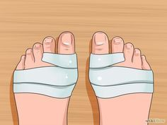Back Pain Information. The Pain Of Arthritis And How To Deal With It. There are a lot of different ways to deal with arthritis and the pains that they cause. When you have daily arthritis pain, it can make life more difficult Bunion Exercises, Stretches, Bunion Remedies, Get Rid Of Bunions, Bunion Pads, K Tape, Foot Pain, Feet Care, Physical Therapy