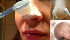 There are several causes of blackheads – improper skin care, excessive consumption of junk food, but also hormonal changes. Proper care of the skin is not possible without the use of different masks, scrubs and creams. Today we have a … Read Causes Of Blackheads, Face Mask For Blackheads, Blackhead Remedies, Blackhead Remover, Skin Tips, Skin Care Tips, Younger Skin, Facial Care, Black Spot
