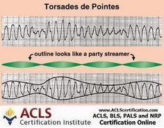 Torsades de pointes (TdP) is an atypical form of ventricular tachycardia, initiated only in the presence of long QT interval. #arrhythmia #ventriculartachycardia