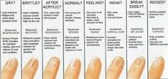 Recognize any of these?  #educateyourself #nails #naildisorders #saveforlater