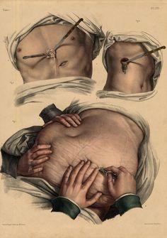 Medical drawings roses 69 Ideas for 2019 Medical Posters, Medical Art, Medical Design, Medical History, Anatomy Art, Anatomy Drawing, Human Anatomy, Medical Illustration, Graphic Illustration