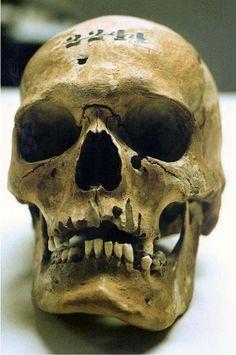 Skull of Lincoln Assassination Conspirator, Lewis Thornton Powell Skull Reference, Figure Reference, Drawing Reference, Lewis Powell, Abraham Lincoln Life, Lincoln Assassination, Anatomy Bones, Skeleton Art, Skull Island