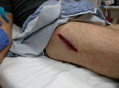 Image result for bullet wound in thigh