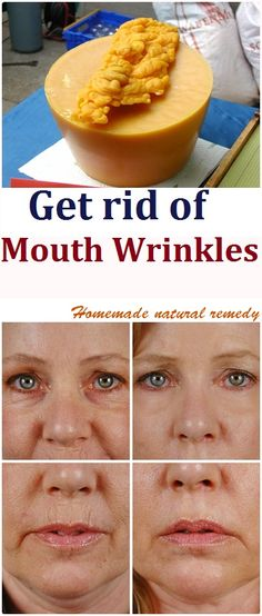 We all pay attention to the wrinkles around our eyes and neck but we mustn't forget our mouth. They could formed be from years of laughter, or stress or generally life, but fine lines start appearing around our mouth when we're 30 years or older. Other causes of wrinkles forming around our mouth could be …