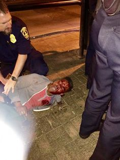 U-Va. student Martese Johnson pens essay for Vanity Fair detailing his bloody arrest - The Washington Post