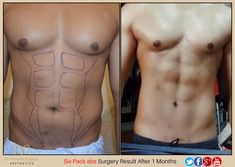 Mostly fit men who work out in the gym regularly to have six packs are suitable candidates for this kind of procedure. Recovery takes a week to 10 day depend. Get A Six Pack, Six Pack Abs, Plastic Surgery, Mens Fitness, Workout, Day, Link, Check