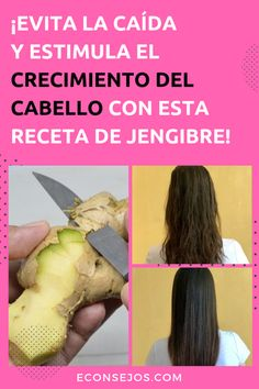 Afro Hair Loss, Baby Hair Loss, Oil For Hair Loss, Hair Loss Shampoo, Cabello Hair, Creme Anti Age, Ginger Benefits, Hair Falling Out, Best Shampoos