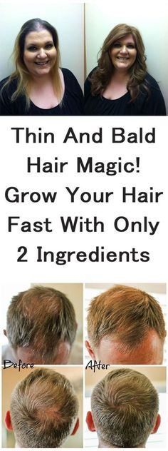 Thin and Bald Hair Magical Growth of Your Hair Fast With Only 2 Ingredients