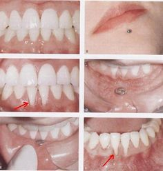 Dentaltown - Removing a lip piercing. Lip piercings can cause gingival recession. You need to watch and monitor them.