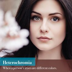 DID YOU KNOW this was possible? While there is usually no disease causing heterochromia, it can be a symptom of another condition. If you have questions, let us know!