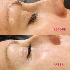 Lash Lifting is semi-permanent lash curling with your natural lashes! This safe & effective treatment is offered at our Humbertown Village Spa location. Lash lifting before and after image. Natural Makeup For Brown Eyes, Natural Lashes, Curl Lashes, Eyelashes, Eyebrows, Asmr, Semi Permanent Lashes, Permanent Makeup, Eyelash Technician