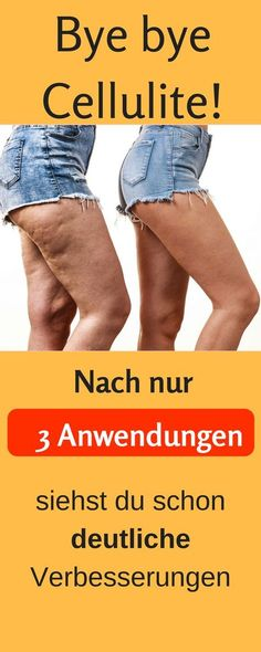 So bekommst du straffe Beine ohne Cellulite. Straffe Beine Übungen, Straffe Beine Ernährung, Beine trainieren, Beine abnehmen, braune Beine, perfekte Beine, schlanke Beine, Cellulite entfernen Hausmittel, Cellulite entfernen Kaffee, Cellulite loswerden, Cellulite schnell loswerden, Cellulite Bauch, Cellulite Übungen, Cellulite Kokosöl #diät abnehmen schwangerschaft