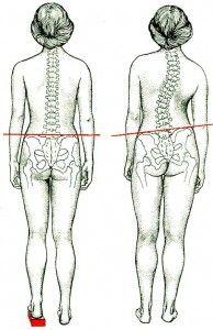 Искривление позвоночника - http://www.doctorate.ru/rachiocampsis/