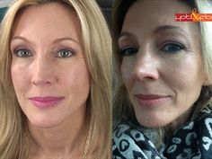 My Experience With Filler (Juvederm) & Botox   GREAT EXPLANATION of botox injection IMBALANCES!