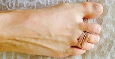 Every Day She Tied Two Of Her Toes With A Rubber Band for high heel pain Beauty Secrets, Diy Beauty, Beauty Hacks, Health And Beauty, Health And Wellness, Body Hacks, Rubber Bands, Natural Medicine, Healthy Tips